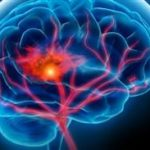 سکته مغزی هر ۶ ثانیه یک قربانی میگیرد/ نرم افزار خطرسنج سکته مغزی را نصب کنید!